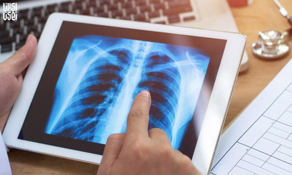 اختراع جدید محققان ایرانی؛ استفاده از فضای ابری برای رادیولوژی بیماران