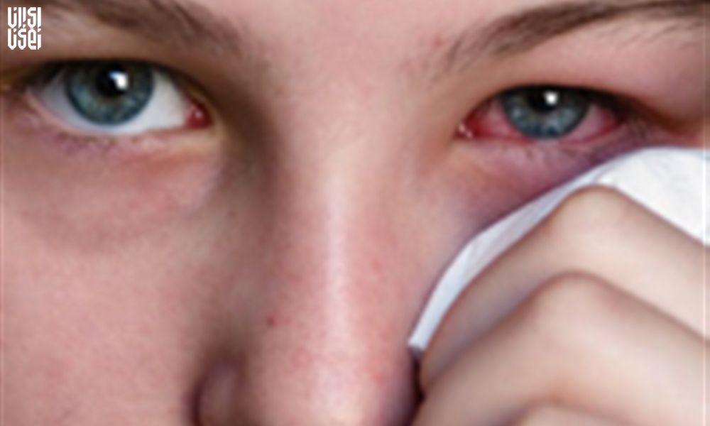چشم ها را باید شست: التهاب چشم با ابتلا به کرونا رابطه دارد