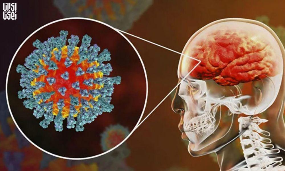 کرونا موجب بروز سکته مغزی میشود
