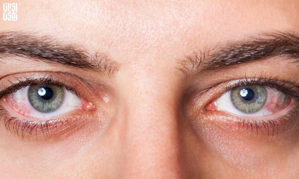 کرونا از طریق چشم منتقل میشود؟