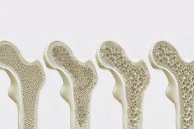 تولید نوعی سیمان برای خودترمیمی استخوان ها