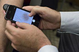 دوربین تلفن همراهی که سرطان پوست را تشخیص می دهد!