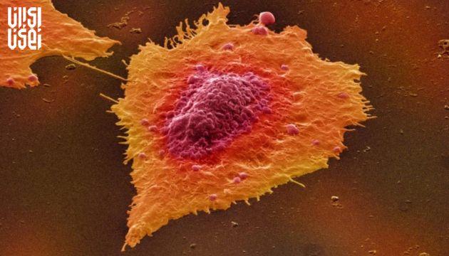 داروی جدید نوید بخش در کند کردن رشد تومورهای سرطان روده